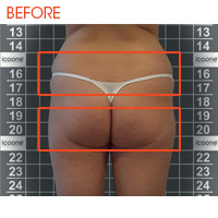 Icoone Body Shaping and Skin Rejuvenation 1