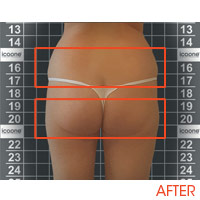 Icoone Body Shaping and Skin Rejuvenation 2