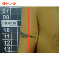 Icoone Body Shaping and Skin Rejuvenation 3