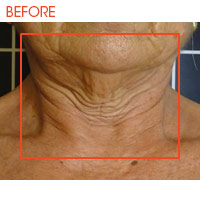 Icoone Body Shaping and Skin Rejuvenation 7