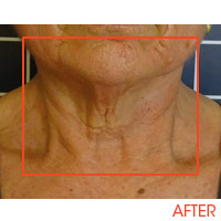 Icoone Body Shaping and Skin Rejuvenation 8