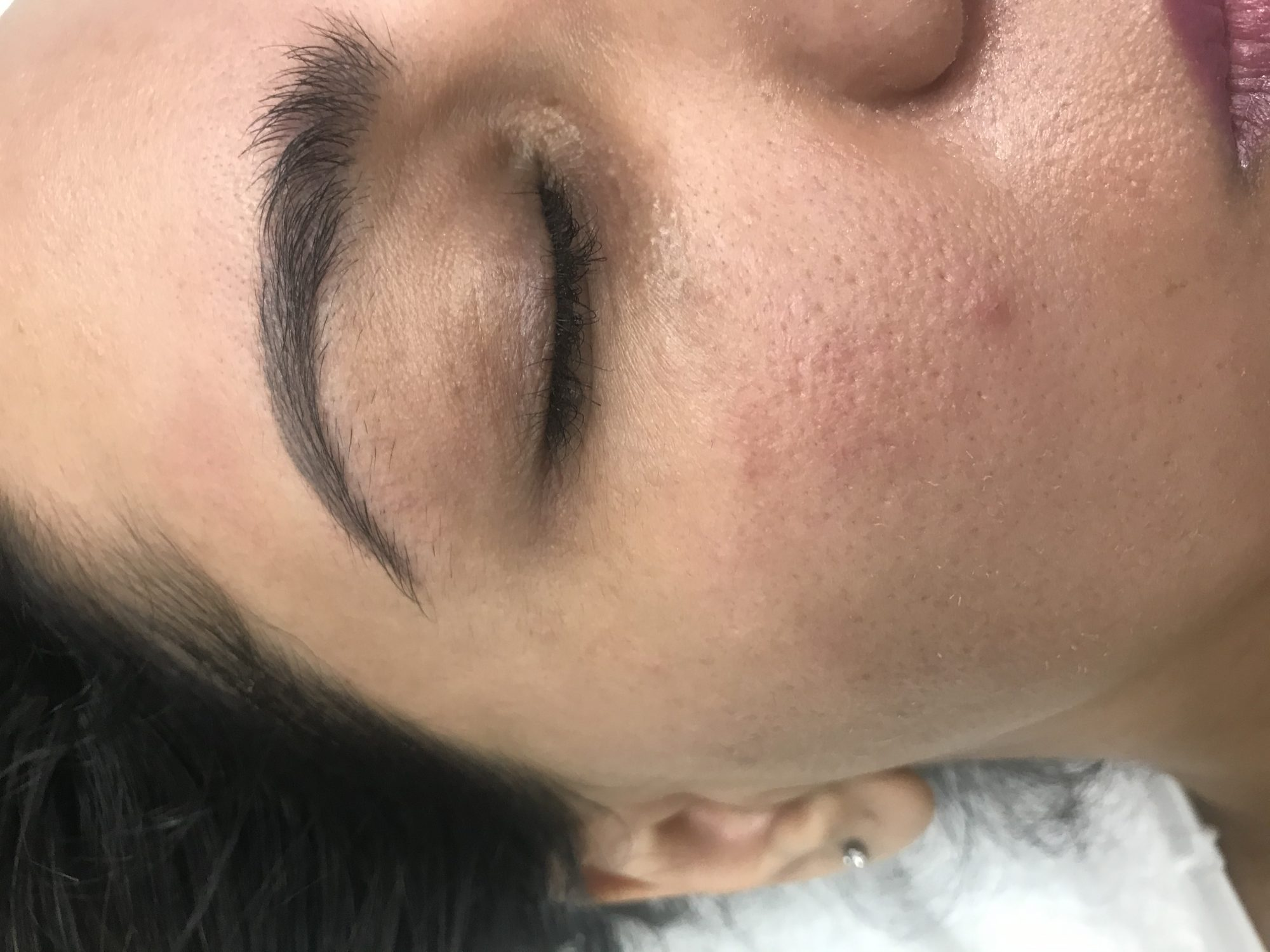 Dark circles - improve your circulation under eyes- Carboxy helps a lot! 2