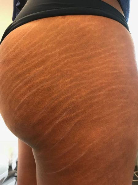 Stretch Marks Before