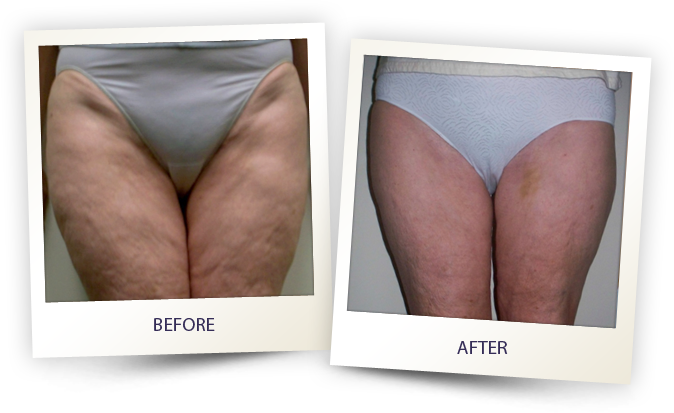 Legs before and after