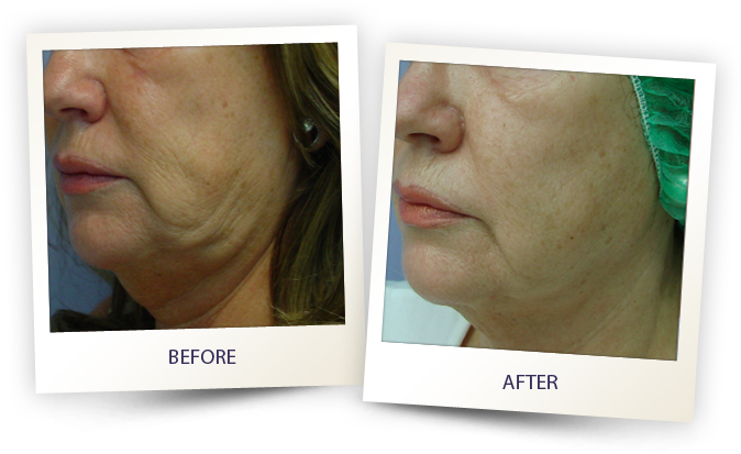 Cheek before and after 3